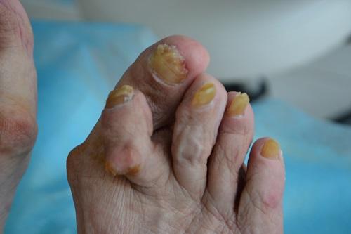 утолщенные ногти