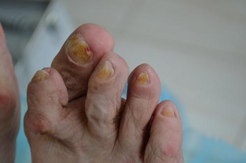 утолщение ногтей на ногах что делать