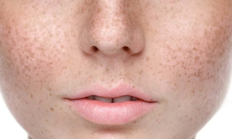 Гиперпигментация на лице
